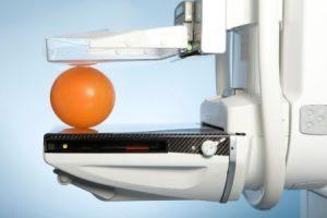 L'importanza della diagnosi precoce