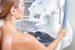 Perché se ho il seno denso devo fare comunque la mammografia dopo i 40 anni?